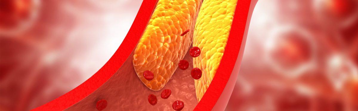 Colesterolo Alto e Alimentazione